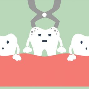 tooth-extraction-862x573